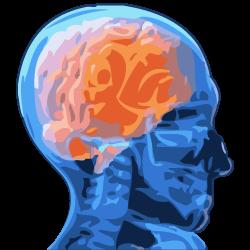 schizophrenic brain